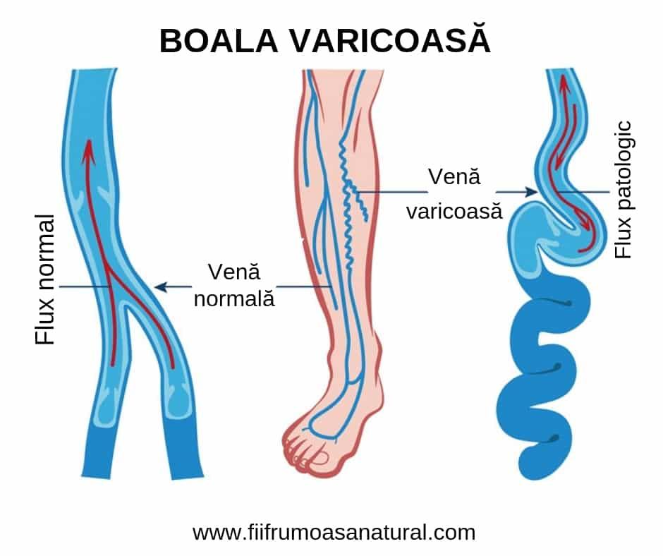 varicoză și stop amorțeală unde să începeți un sondaj în varicoză